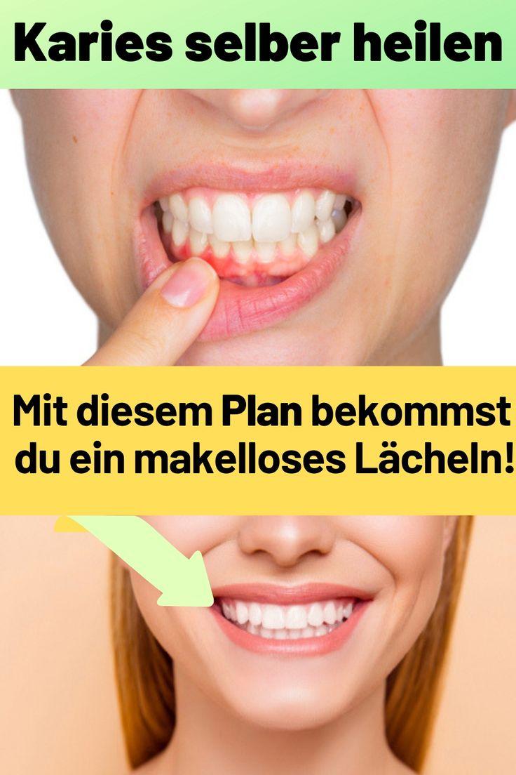 Kinder Ohne Zähne