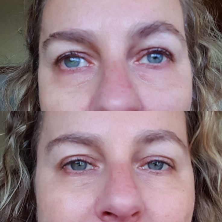 Wow 20 minutes with our new product eye gel patches and my eyes feel refreshed and look less tired - let me know if you'd like more info 😃
