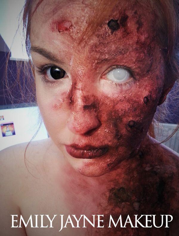 Second degree facial burns