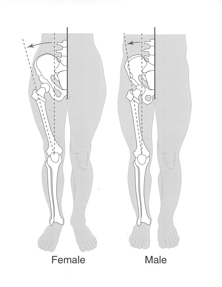 Females have a wider pelvis than males and a larger Q-angle at the ...