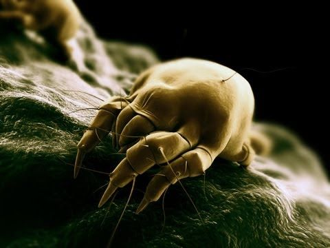 Dust Mites, Allergies and Asthma  An air quality issue that can be solved with heat!