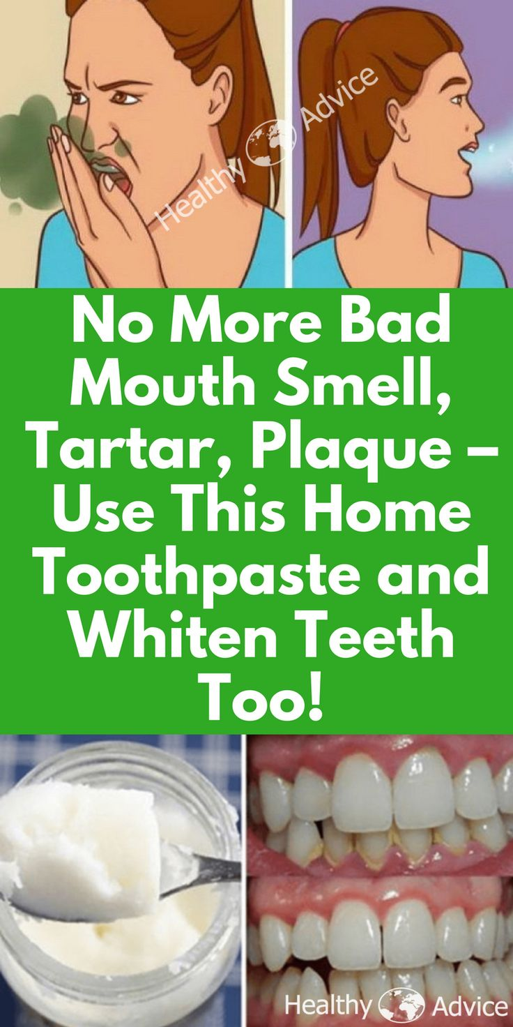 bad breath remedy   bad breath   bad breath cure   bad breath remedy how to get rid of   bad breath aka. halitosis   bad breath and other social insecurities   tartar removal from teeth   plaque removal   plaque teeth   plaque removal at home   plaques   toothpaste   toothpaste recipe  
