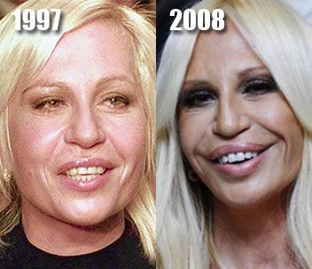 Donatella Versace  She has remade her whole face - browlift, rhinoplasty, lip augmentation, facelift, veneers.