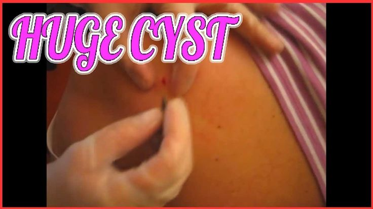 Sebaceous cyst removal at home. Large zit on back