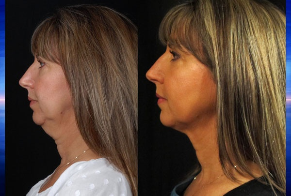 Is the skin on your face looking droopy, saggy and wrinkled? A brand new procedure promises to take 10 years off your appearance without a scalpel. Could it work for you?