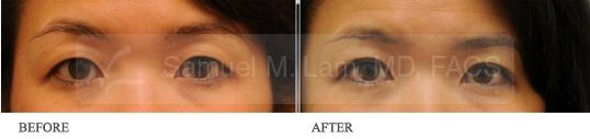 Asian Double Eyelid Blepharoplasty (6 Months) - Asian Double Eyelid Blepharoplasty Surgery By Dr Samuel Lam @Lamfacialplastics . This Woman Shown Here Is 6 Months Post Operation. #Blepharoplasty #Doubleeyelid #Asian #Plasticsurgery #Dallasplasticsurgeon #Drsamlam