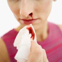 Nose Bleeds & Vitamin Deficiencies