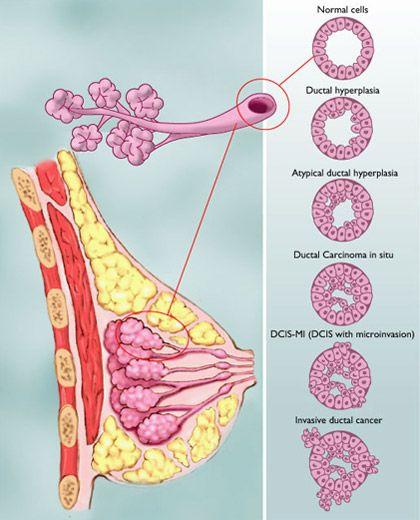 Range of Ductal Carcinoma in situ | AskDoctorHansen.com