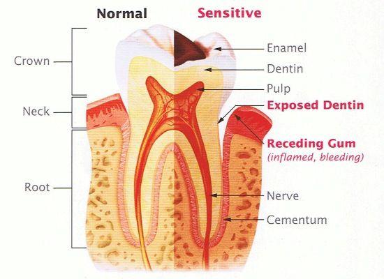 #ToothSensitivity #DentalCare #PearlDentalCare