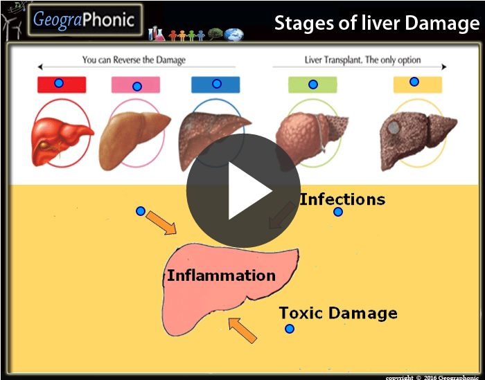 Free Quiz Game : Stages of Liver Damage    Stages of Liver Damage, #Stages , #Liver #Damage, liver, damage, #inflammation of liver, inflammation, #toxic damage, #infections, toxic, #transplant, #transplantation, liver transplant, liver transplantation, #HCC, HCC liver, #healthy liver, healthy, #Alcohol, #Drugs, #Poisons, #chemicals, #Viruses , #Bacteria, #Fungi, #Protozoa, #Immunologic Damage, Immunologic, #Cirrhosis Liver #Fatty liver, fatty, #Fibrosis ,, #reverse, #operation, #operated