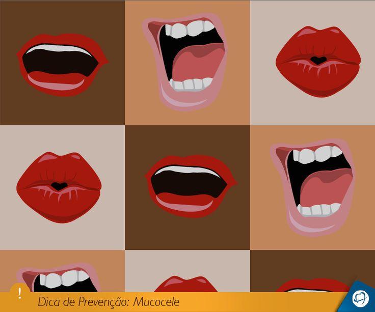 A Mucocele trata-se de uma lesão em forma de bolha, localizada geralmente no lábio inferior, causada pelo entupimento das glândulas salivares. Essas lesões são muito comuns em crianças e em pessoas que têm o hábito de mordiscar o lábio, que acaba levando a mucocele.  #mucocele #lesõesbucais #odonto #odontologia #odontolovers #boca #lábio #fdicas