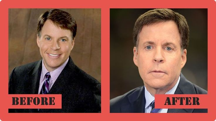 Bob Costas Plastic Surgery Before And After Bob Costas Plastic Surgery #BobCostasPlasticSurgery #BobCostas #celebritypost