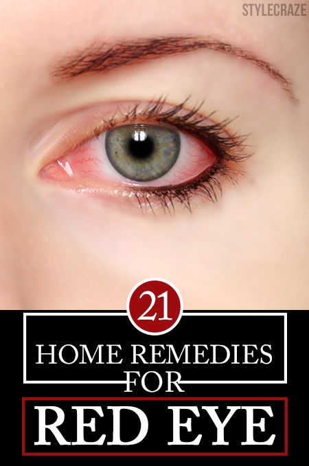 21 Effective Home Remedies For Red Eyes-Red eyes develop with many causes. At times, they can be a serious problem associated with many other signs. Know the 21 best remedies for red eye infections!