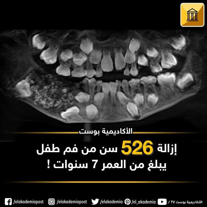 إزالة 526 من أسنان طفل يبلغ من العمر 7 سنوات أزال الأطباء 526 سنة