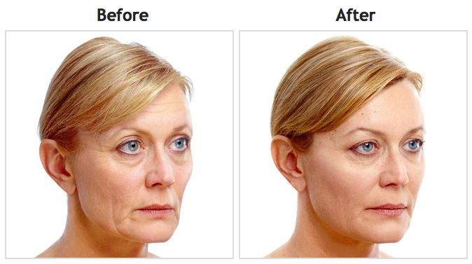 healthier and young skin. Luminesce