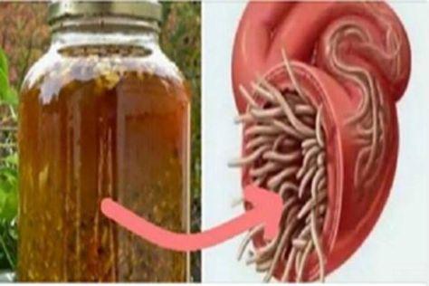 Ez az erős antivirális és gombaellenes formula, fokozza a vérkeringést és a nyirok áramlását minden testrészben, ezáltal elősegítve az egészség megőrzését. A növényi alapú gyógykészítményt mi magunk is előállíthatjuk, így sok kellemetlenséget okozó kórt időben megelőzhetünk. Még a pestis járványtól