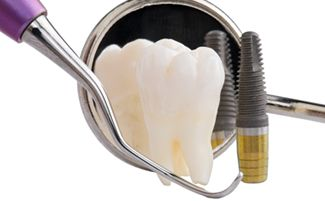 tooth implant cost orlando