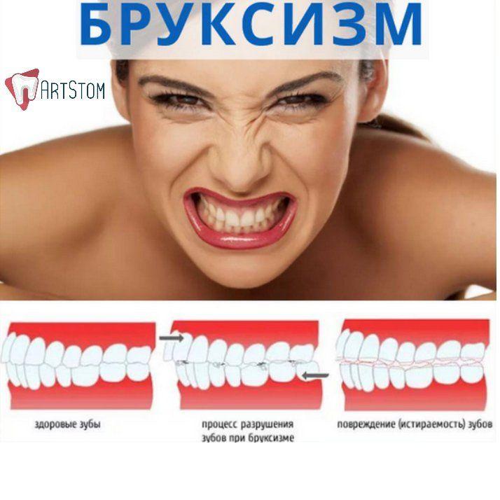 📝БРУКСИЗМ Симптомы. Бруксизм у взрослых — тема, которая волнует многих. По поводу возникновения заболевания выдвигалось немало гипотез, однако окончательные выводы пока что не сделаны. Одна из возможных причин – смыкание зубов вследствие дневного стресса. Поэтому медики советуют учиться расслаблению. В противном случае наблюдается стрессовое состояние. Не исключена боль в ухе. Вследствие бруксизма также возникает: • головная боль; • бессонница; • отечность; • боль в челюсти. Людям, усиленно…