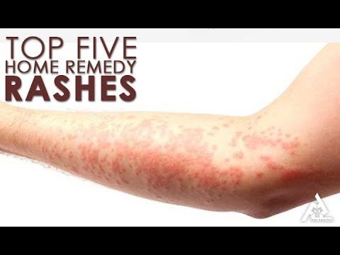Top 5 Home Remedies for Rashes | Best Health and Beauty Tips | Lifestyle