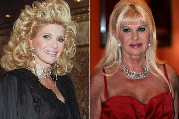 Ivana Trump Plastic Surgery Before and After botox, breast implants, celebrity plastic surgery, facelift, ivana trump plastic surgery, lip fillers, nose job
