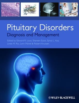 Pituitary disorders : diagnosis and management