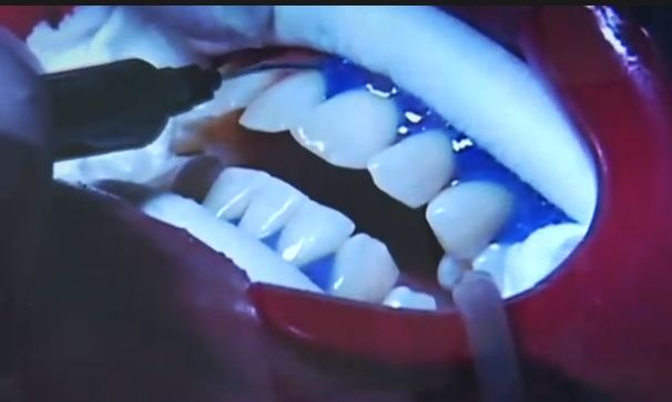 Tooth Whitening with Brite Smile and Zoom