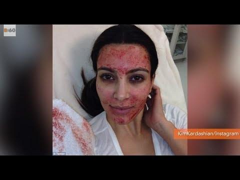 Kim Kardashian Gets Vampire Facial | Forever Young ...