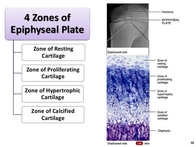 55 4 Zones of Epiphyseal Plate Zone of Resting Cartilage Zone of Proliferating Cartilage Zone of Hypertrophic Cartilage Zone of Calcified Cartilage ...
