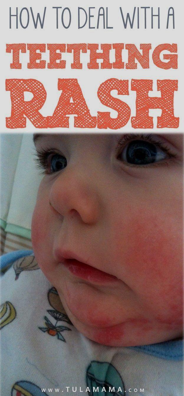 0c21282a2f858c3f2a611051f4c3ca4f - How To Get Rid Of Teething Rash Around Mouth