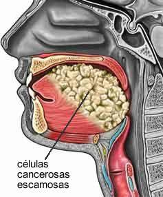 Síntomas del cáncer de boca