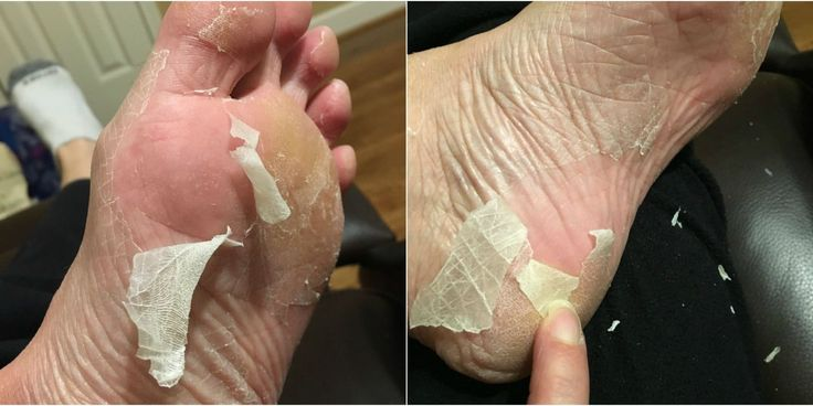 """Read This Before You Try the """"Baby Foot"""" Craze - People are going wild for this — but is it safe?"""