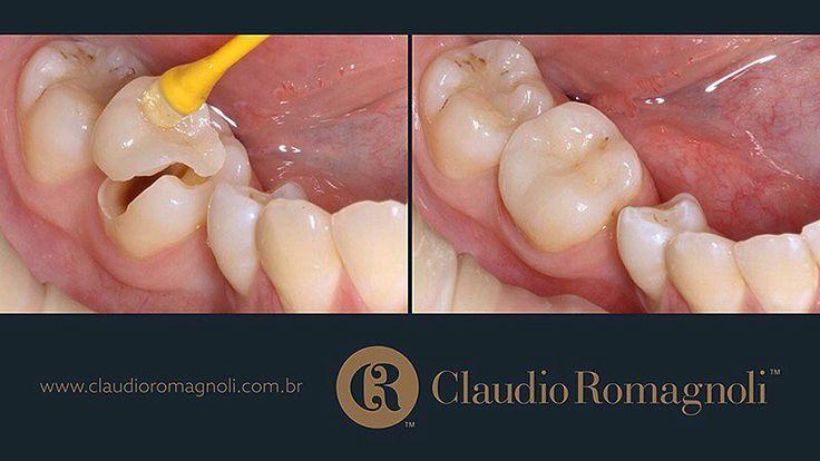 As #porcelanas também são bem indicadas para reconstruir os #dentes posteriores o que proporciona uma #mastigação eficiente!!! #claudioromagnolijr #dentista #facetasdeporcelana #londrina #dentistalondrina #odonto #odontologia #dentistry #aestheticdentistry #emax #odontologiaestetica #cosmeticdentistry by claudioromagnolijr Our Cosmetic Dentistry Page: http://www.myimagedental.com/services/cosmetic-dentistry/ Google My Business: https://plus.google.com/ImageDentalStockton/about Our Yelp Page…