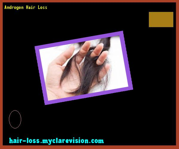 Androgen Hair Loss 090903 - Hair Loss Cure!