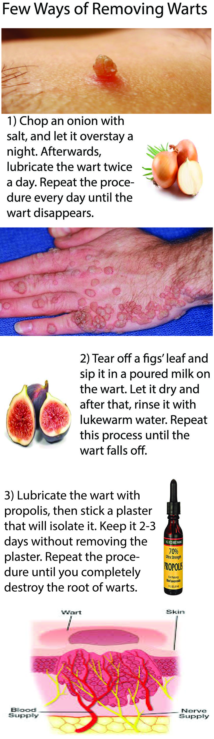 Warts are growths on the surface layer of the skin, uneven and sometimes painful. Different types of viruses cause this health issue. They can be transmitted by direct or indirect contact, infection are more prone to people with weak immune systems. #warts #treatment #remove