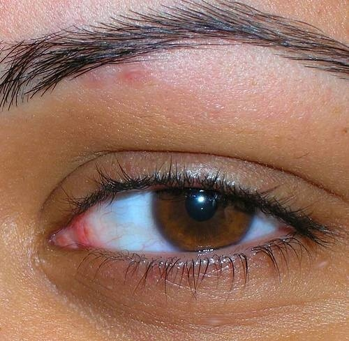 What Are The Treatments For A Swollen, Itchy Eyelid
