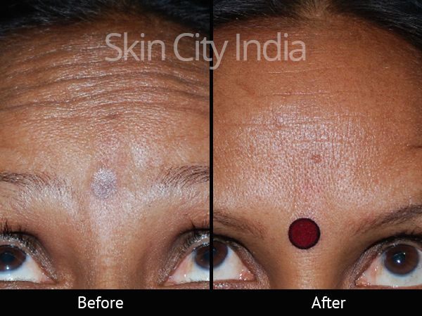 New post   skincityindia 1 image saved images albums gallery profile favorites messages settings  sign out Skin City India - Forehead Botox Treatment