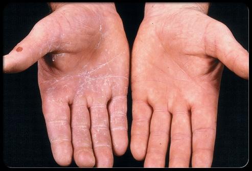How To Treat Hand Fungus Naturally