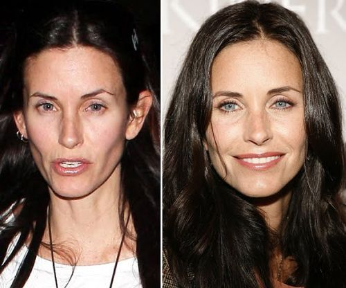 Courtney Cox Plastic Surgery