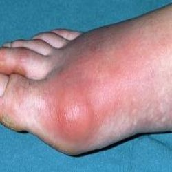8 Best Home Remedies for Gout I have a sore big toe and am looking for possible reasons for it. This sounds SO old!!!