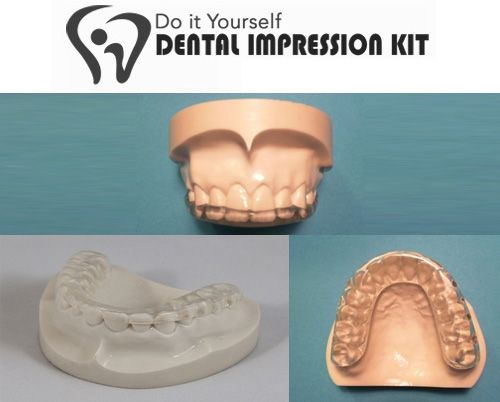 100 best home dental kits images on pinterest dental dentistry a complete dental kit for complete oral health solutioingenieria Image collections