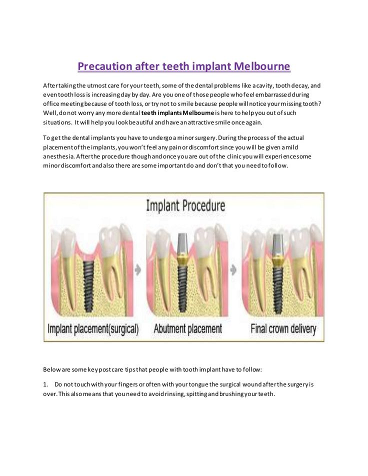 Well, do not worry any more dental #teeth #implants #Melbourne is here to help you out of such situations. It will help you look beautiful and have an attractive smile once again.