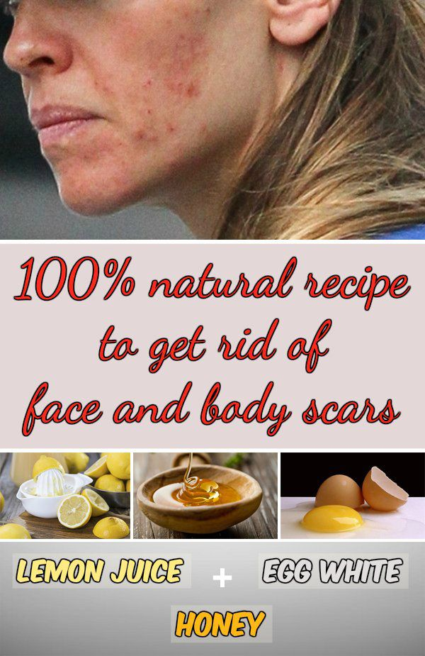 100% natural recipe to get rid of face and body scars - WomenIdeas.net