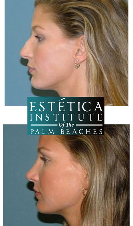 Board Certified Plastic Surgeons at Estetica Institute Before and After Nose Job