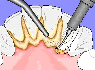 What is calculus and what dangers does it pose to your oral health? Calculus (also referred to as tartar) is a calcified, hardened form of dental plaque. When plaque and bacteria are left on your teeth for too long it begins to harden on the teeth and the result is calculus that can only be removed by your #dentist or #hygienist as it is too thick to remove with a simple tooth brush or floss.