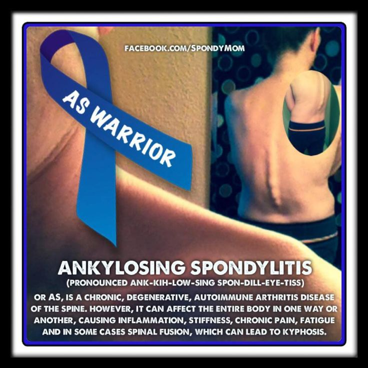 living through the pain of ankylosing spondylitis essay Read about ankylosing spondylitis (as), a long-term (chronic) condition in which the spine and other areas of the body become inflamed back pain and stiffness.