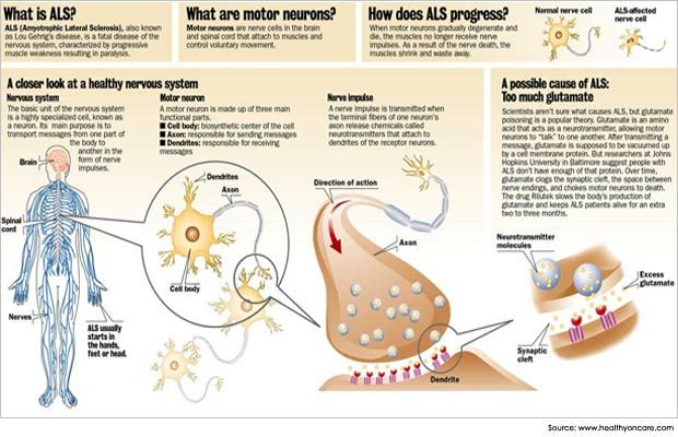 Amyotrophic lateral sclerosis is a motor neuron disease that affects muscle nourishment and hence, voluntary movements in the body. Read more