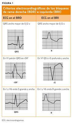 Bloqueos de rama (AMF 2011) Mejorando la capacidad resolutiva