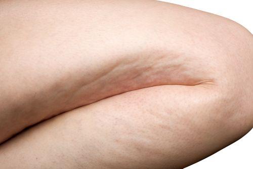 Простые упражнения против целлюлита - Шаг к Здоровью