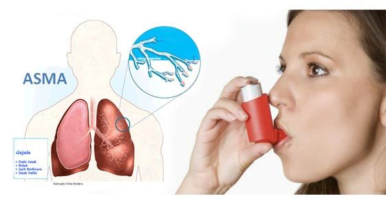Mengobati  Penyakit Asma Dengan Herbal Pilihan