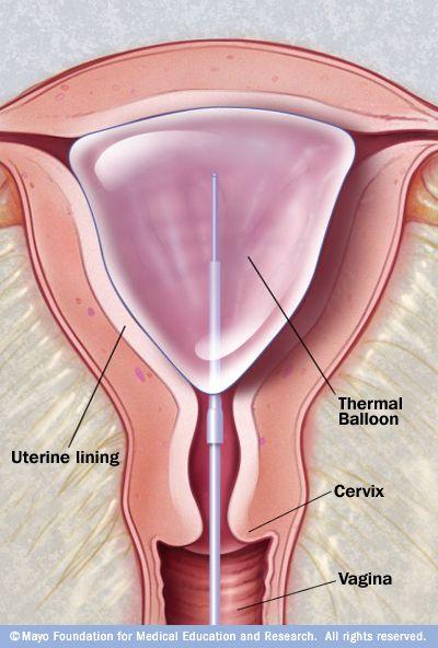 What are some medical conditions that uterine cryoablation helps?